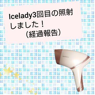 icelady(アイスレディ)/notime/ボディケア美容家電を使ったクチコミ(1枚目)