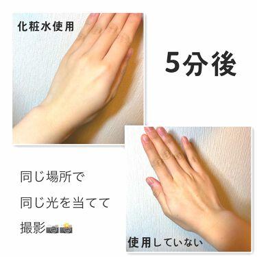 ブランホワイトホワイトニングローションリッチモイスト/BLANC WHITE/化粧水を使ったクチコミ(3枚目)