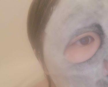 ブラックシートバブルパック/イエスパ/シートマスク・パックを使ったクチコミ(2枚目)