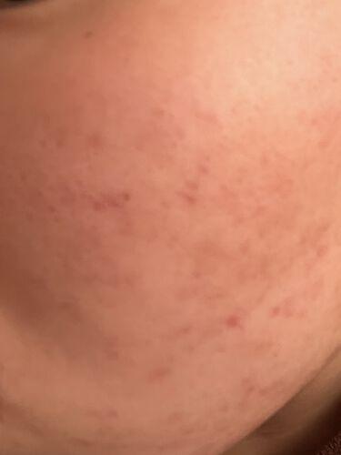 ニキビJK on LIPS 「汚肌からお肌への道!!9週間目!!今回のこの写真はホントに起き..」(3枚目)