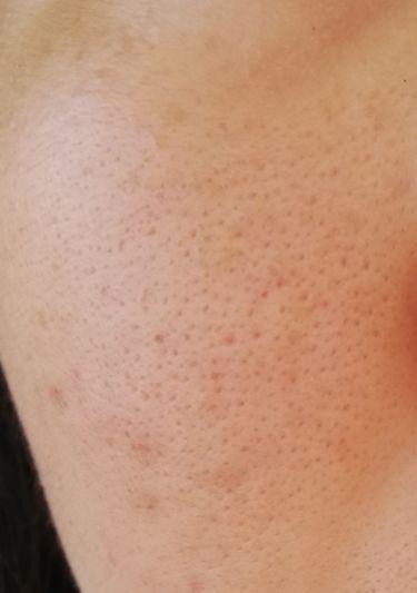 薬用 クリアウォッシュ/ORBIS/洗顔フォームを使ったクチコミ(4枚目)