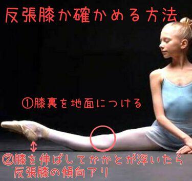 反 張 膝 改善