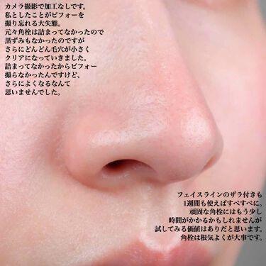 オバジC 酵素洗顔パウダー/オバジ/洗顔パウダーを使ったクチコミ(4枚目)