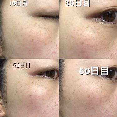 薬用美白 肌ホワイトマスク/クリアターン/シートマスク・パックを使ったクチコミ(2枚目)