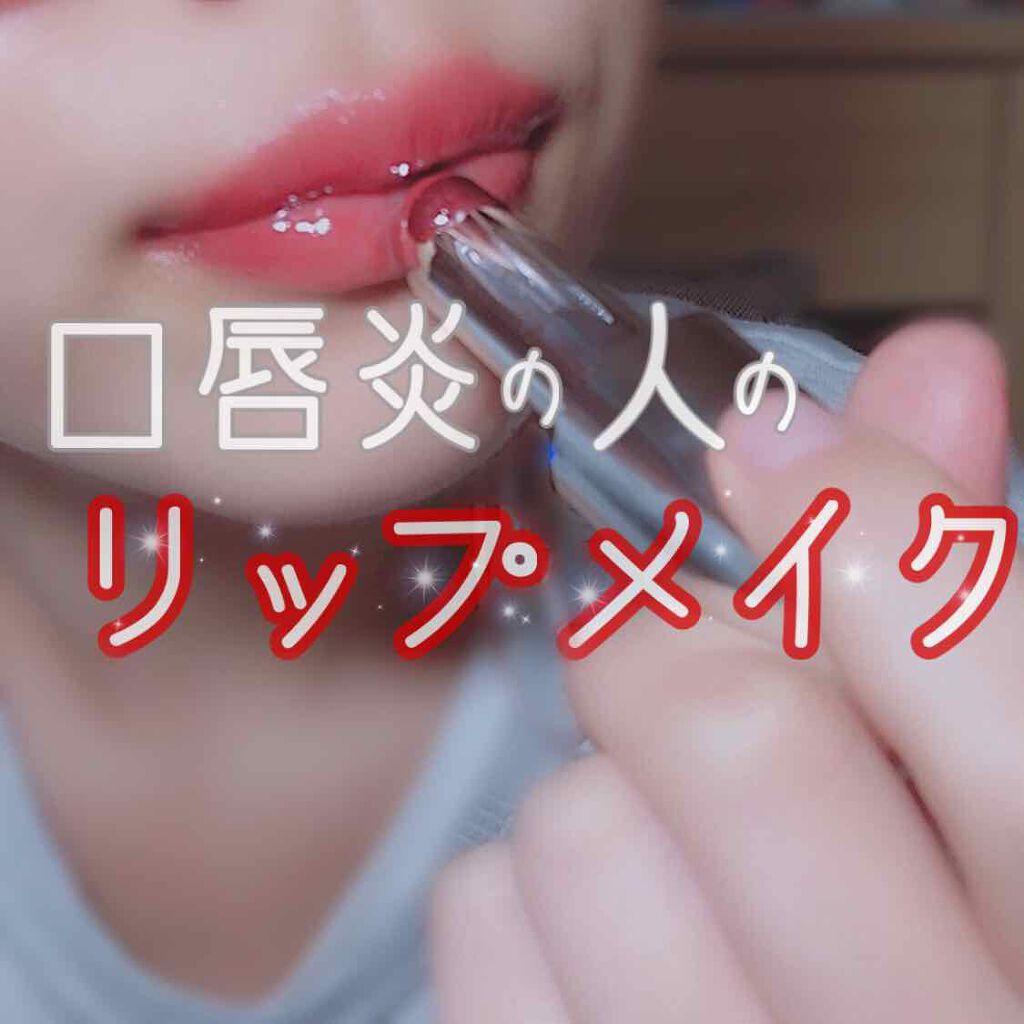 は と 口唇 炎