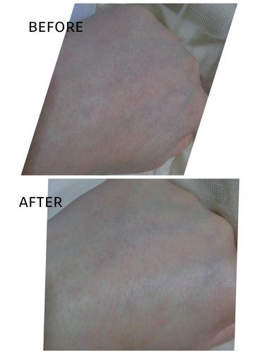 ボタニカル高保湿ジェル/ナイス&クイック/美容液を使ったクチコミ(4枚目)