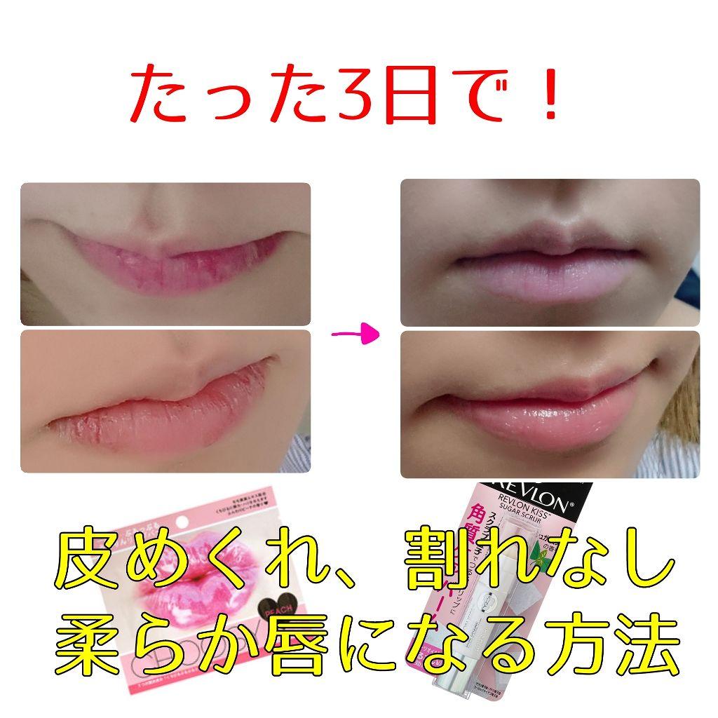 を むく の 皮 唇