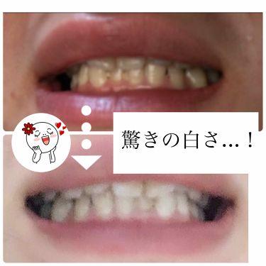 ティースラボ ボタニカル トゥースペースト/TeethLab/歯磨き粉を使ったクチコミ(3枚目)
