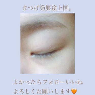 アイラッシュセラム〈まつげ美容液〉/DAISO/美容液を使ったクチコミ(3枚目)