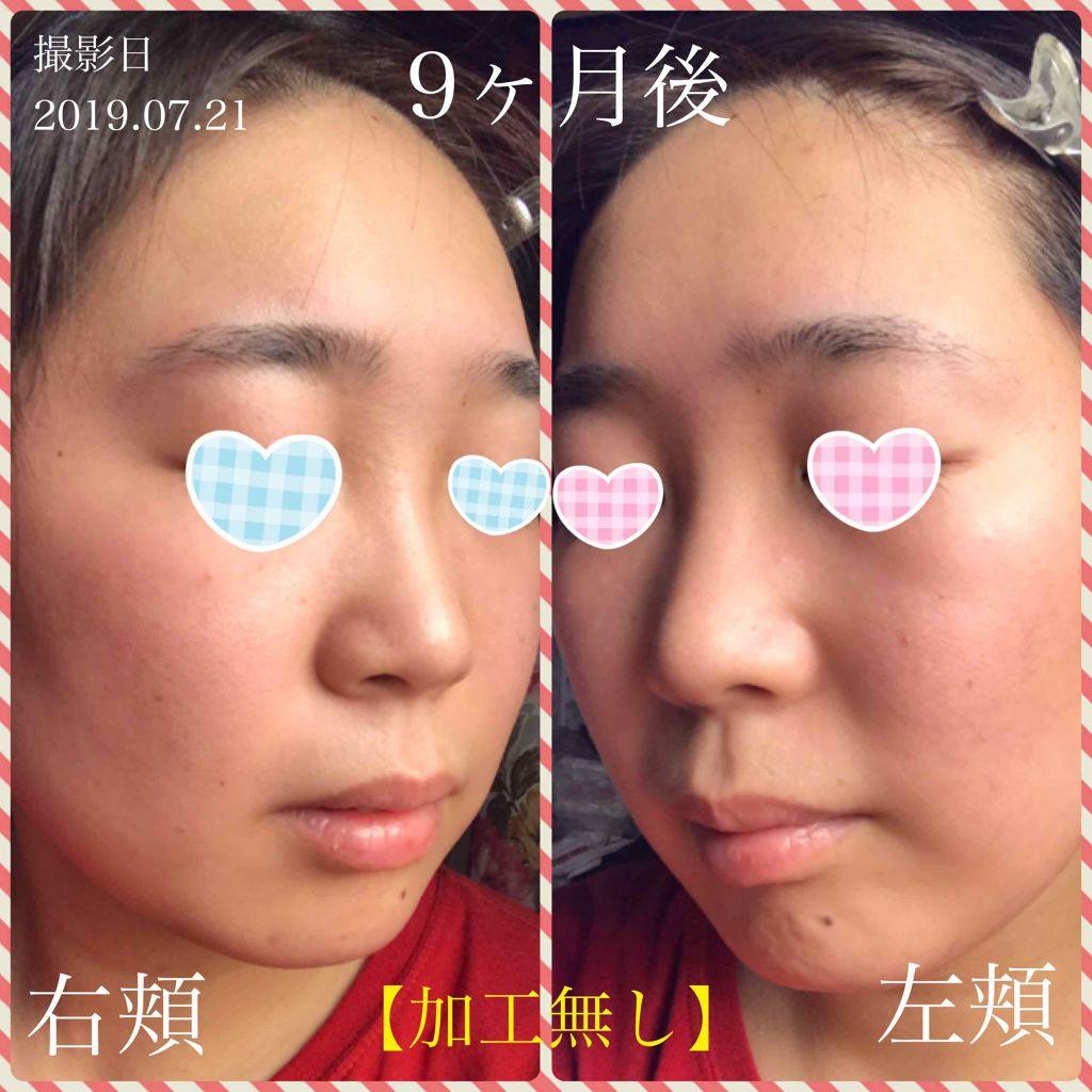 ニキビ 意味 眉間