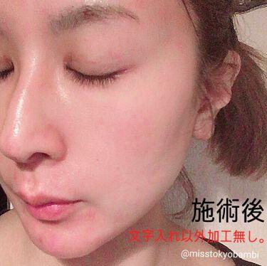 白ゆり@美容ブロガー on LIPS 「湘南美容外科でダーマペン4を受けてきました。୨୧┈┈┈┈┈..」(7枚目)