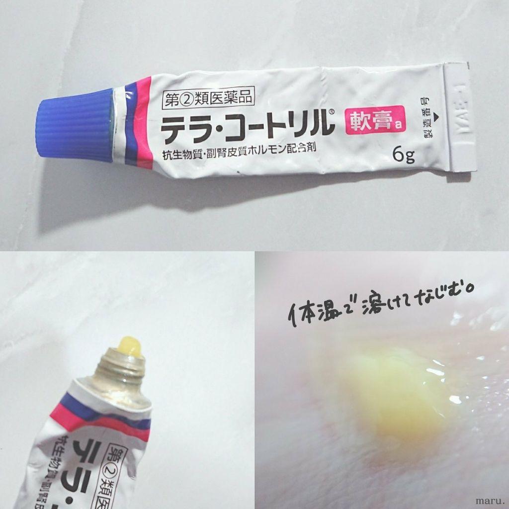 ニキビに効く塗り薬