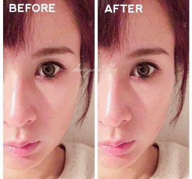 白ゆり@美容ブロガー on LIPS 「たった5秒!貼るだけで小顔になれると韓国で話題になっていたヨウ..」(4枚目)