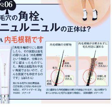 ポアライザーX/メナード/美容液を使ったクチコミ(2枚目)