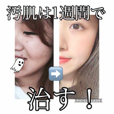 洗顔フォーム しっとりタイプ/ちふれ/洗顔フォームを使ったクチコミ(1枚目)
