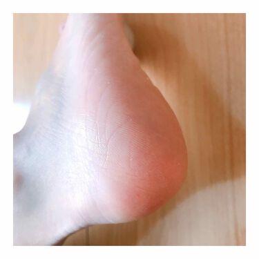 Dr.セーム 洗顔ミトン/アレトコレ/その他スキンケアを使ったクチコミ(4枚目)