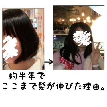 ヘアアクセルレーター レモンライムの香り/加美乃素本舗/頭皮ケアを使ったクチコミ(1枚目)