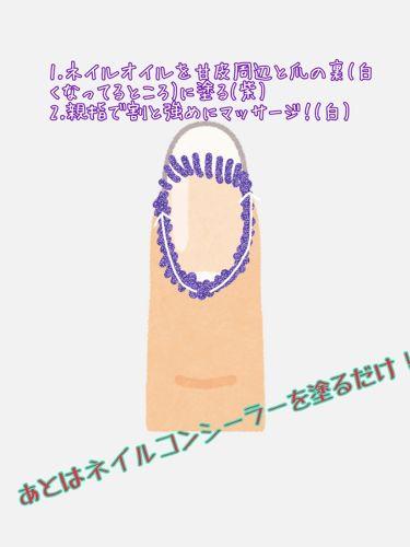 カンコレ ネイルコンシーラー/DAISO/マニキュアを使ったクチコミ(3枚目)
