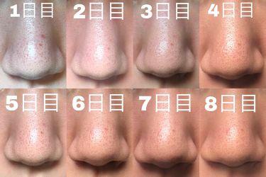 泥炭石 洗顔石鹸/ペリカン石鹸/洗顔石鹸を使ったクチコミ(3枚目)