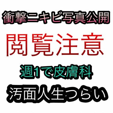 テラマイシン 軟膏(医薬品)/ジョンソン・エンド・ジョンソン(医薬品)/その他を使ったクチコミ(1枚目)