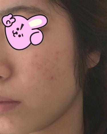 薬用洗顔フォーム/スキンライフ/洗顔フォームを使ったクチコミ(3枚目)