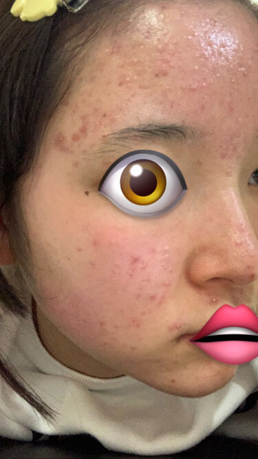 【画像付きクチコミ】こんにちは(ᐢ.̫.ᐢ)海苔と申します✊🏼・3月12日より、お肌日記始めますᐡඉ̫́ඉ̀ᐡ私にはお肌に優しめな化粧水が合うなと最近知らされました。なのでLIPSで色んな化粧水のクチコミを探しまくり、購入した化粧品たちがこちらです…!I...