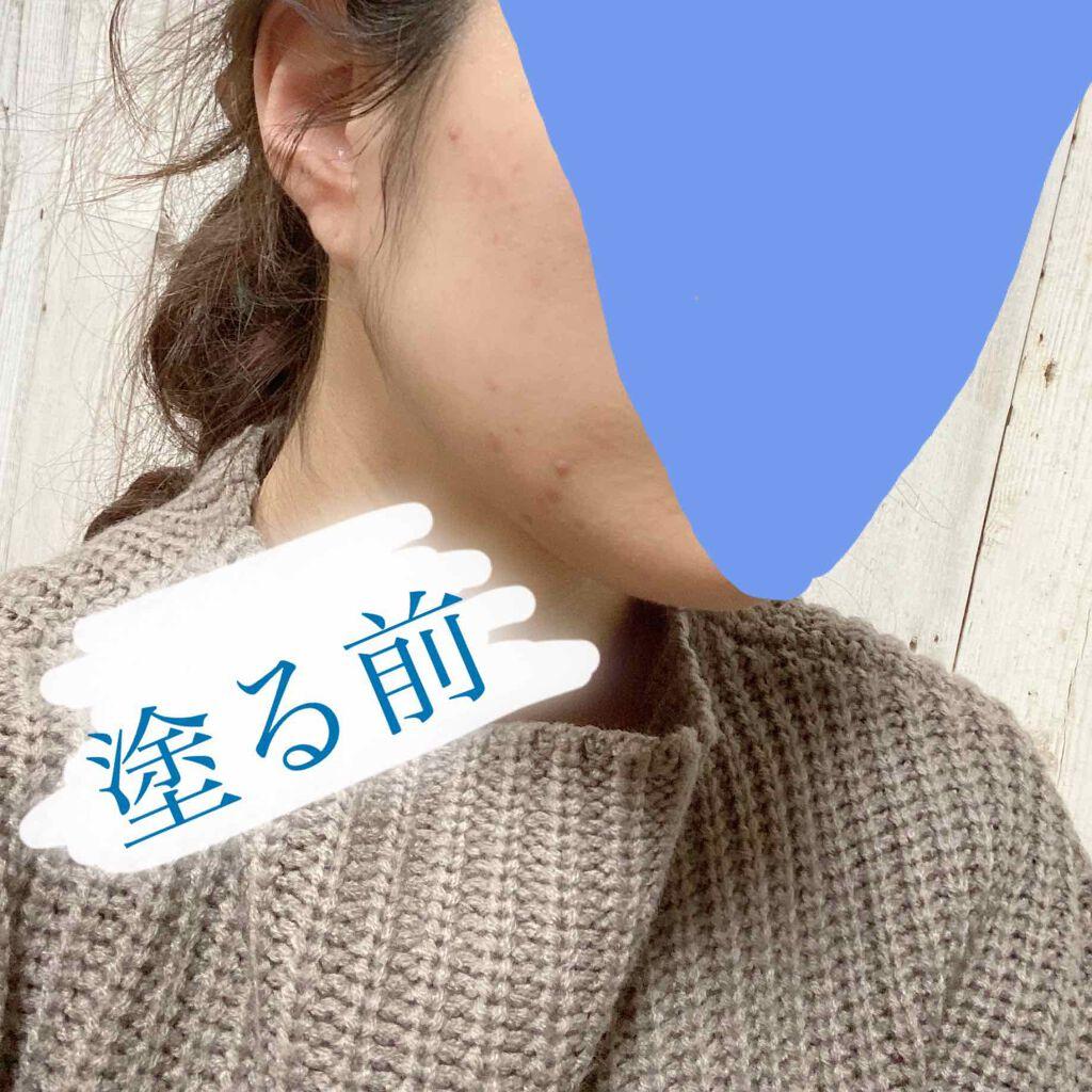 https://cdn.lipscosme.com/image/b94e5791417a6bfb69c35894-1580551723-thumb.png