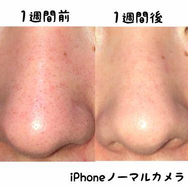 白潤 薬用美白化粧水/肌ラボ/化粧水を使ったクチコミ(2枚目)
