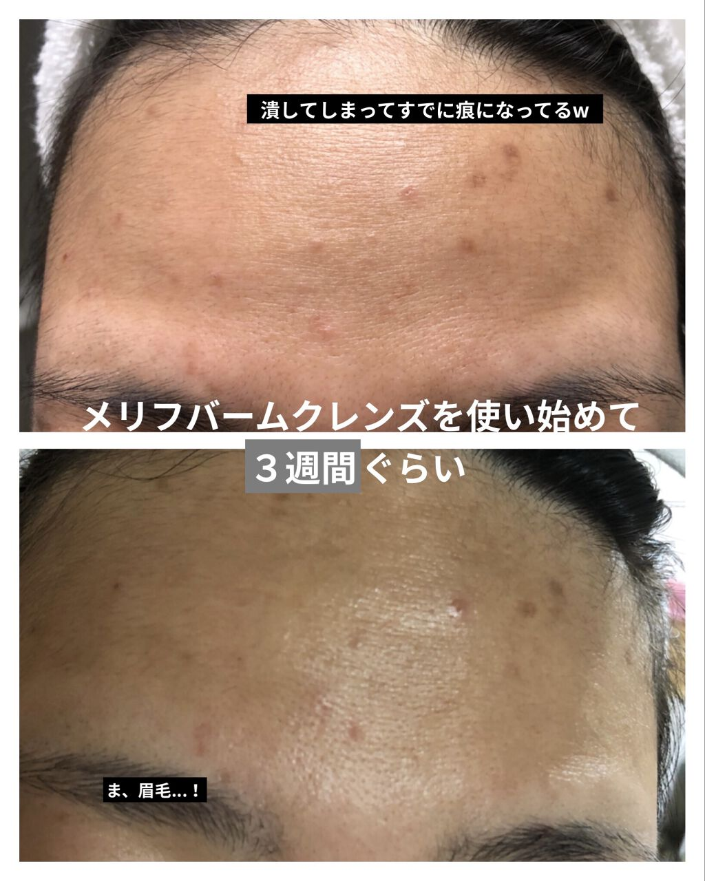 メ リフ バーム クレンズ 口コミ MELLIFE(メリフ) / BALM...