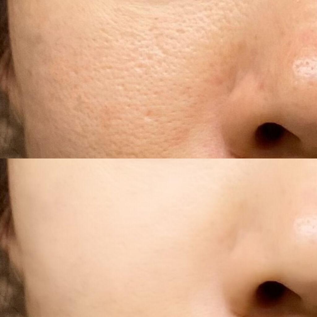 【毛穴の種類別】毛穴を引き締める方法&おすすめ洗顔料・化粧水・美容液|毛穴レスな褒められ肌にのサムネイル