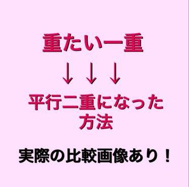 絆創膏/その他/その他を使ったクチコミ(1枚目)