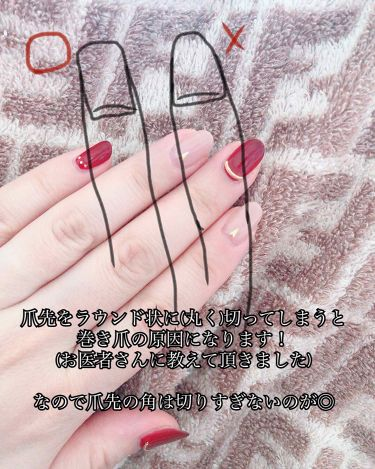 miii▶︎コスメヲタクの本音投稿✏︎ on LIPS 「意外と知らない爪の切り方教えます!私実はかなりの巻き爪でして💦..」(2枚目)