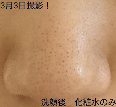 クリアアップローション 1/IPSA/化粧水を使ったクチコミ(3枚目)