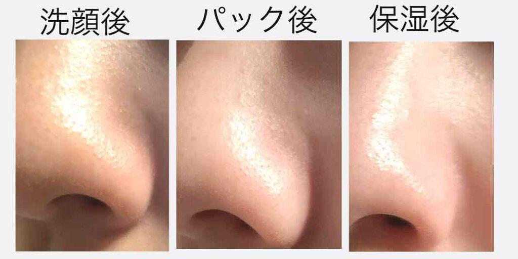 毛穴パックは本当によくないの?肌のための使い方・角栓への効果・おすすめ商品を大特集のサムネイル