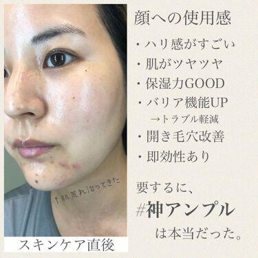 シカ ダブル エフェクト アンプル/isoi/美容液を使ったクチコミ(4枚目)