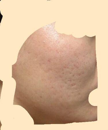 【画像付きクチコミ】ナチュリエハトムギ化粧水(ナチュリエスキンコンディショナーh)に星4個の評価をつけました。美白化粧水VCに星4個の評価をつけました。敏感肌用薬用美白美容液に星4個の評価をつけました。極潤ヒアルロン乳液に星4個の評価をつけました。エピデ...