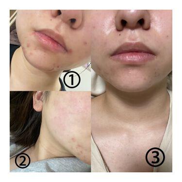 大人のニキビ対策 薬用美白化粧水/肌美精/化粧水を使ったクチコミ(3枚目)