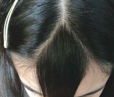 あゆたん(投稿停止中) on LIPS 「どうも、あゆたんです。今回は自分で前髪を流行りのシースルーにし..」(2枚目)
