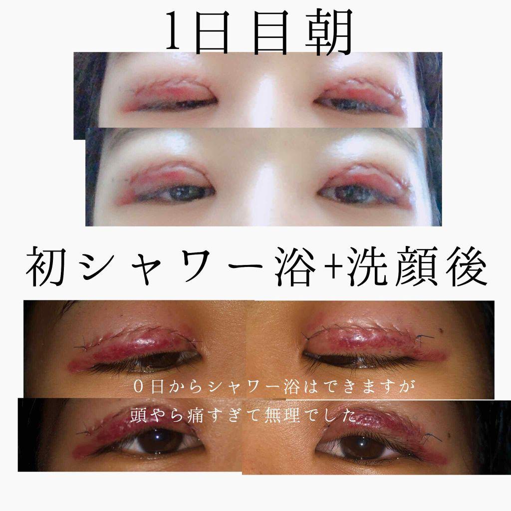 二重整形の口コミ「ー全切開+眼瞼下垂手術経過ー1〜5日まで