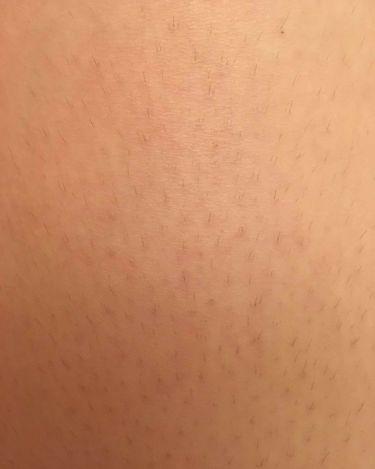 除毛クリームキット(トリートメントEX配合)/エピラット/脱毛・除毛を使ったクチコミ(2枚目)