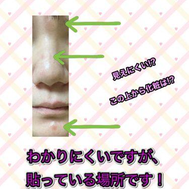 ゼロスポットパッチ/Today's Cosme/にきびパッチを使ったクチコミ(2枚目)