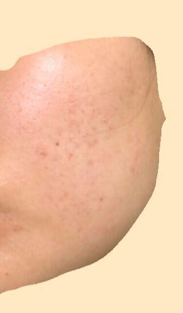 【画像付きクチコミ】白潤薬用美白化粧水に星4個の評価をつけました。敏感肌用薬用美白美容液に星4個の評価をつけました。エピデュオゲル(医薬品)に星4個の評価をつけました。