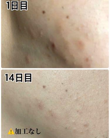 シカペアクリーム/Dr.Jart+(ドクタージャルト)/化粧下地を使ったクチコミ(4枚目)