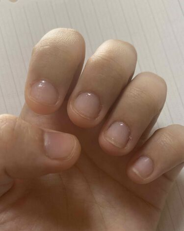 【画像付きクチコミ】#ぱななの爪伸ばし日記生まれてこの方ずっと深爪です。物心ついた頃から爪を噛み続け、こんな爪になってしまいました。今年20歳になるし、そろそろ醜い爪を卒業したい今はコロナでバイトがなくてネイルができるから、トップコートを塗って爪を噛まな...