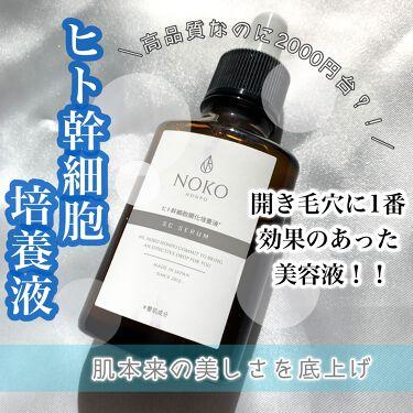 ビタミンC誘導体10%ローション/濃厚本舗/化粧水を使ったクチコミ(1枚目)