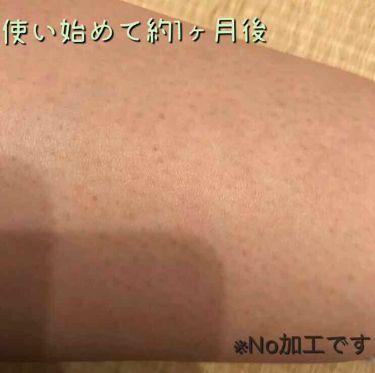 ケアノキュア(医薬品)/小林製薬/その他を使ったクチコミ(2枚目)