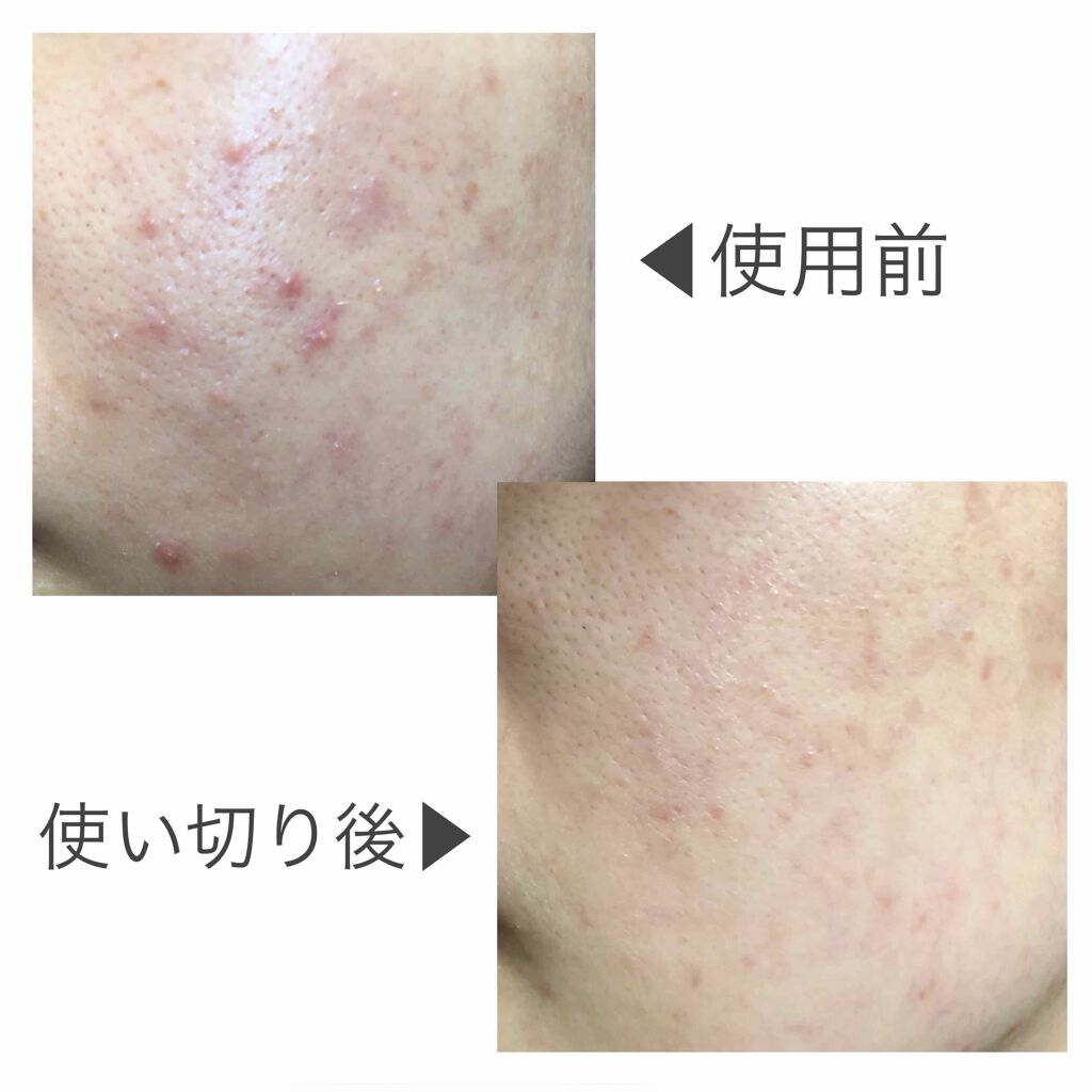 https://cdn.lipscosme.com/image/9a57efdc62175fda66b1fb8e-1606901623-thumb.png