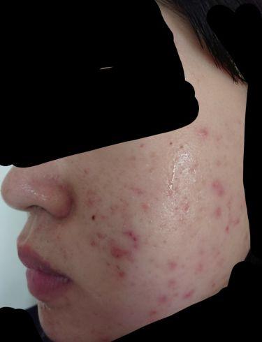 薬用プレミアムアクネケアローション/emione(エミオネ)/化粧水を使ったクチコミ(2枚目)
