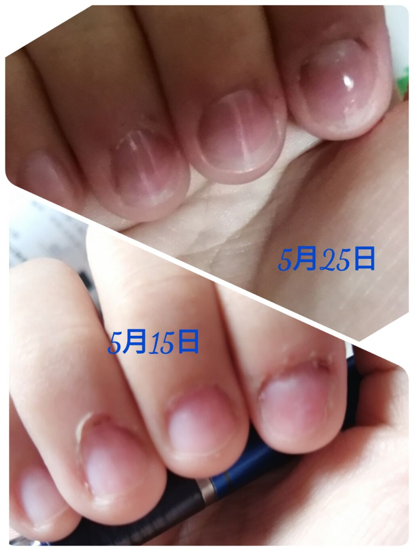 自 傷 噛み 爪