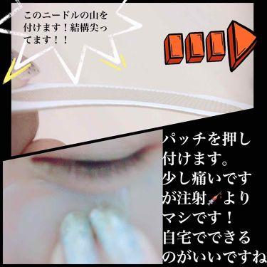 スペシャルワンマイクロパッチ/その他/シートマスク・パックを使ったクチコミ(2枚目)